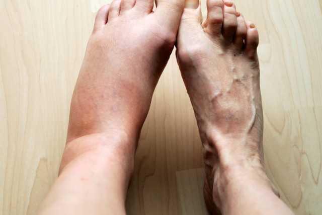 7 طرق لعلاج تورم الساق
